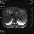 Central Hepatectomy
