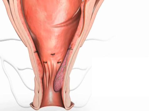 растянутые вагины и анусы фото - 5